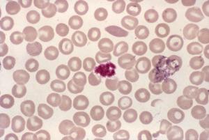 plaquette sang