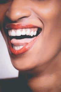 dent blanche avec peroxyde hydrogene